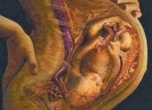 ciri ciri ibu hamil mengandung bayi perempuan